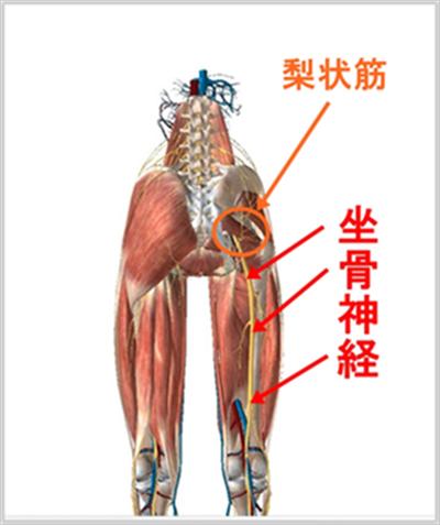 ②坐骨神経痛の原因